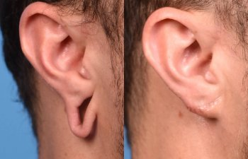 patient before and after earlobe repair procedure -left ear